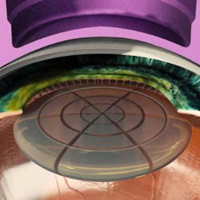 Láser de femtosegundo. Enfermedades y tratamientos para los problemas oculares por el Instituto Oftalmológico Recoletas.