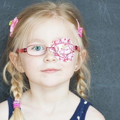 Ambliopía. Enfermedades y tratamientos para los problemas oculares por el Instituto Oftalmológico Recoletas.