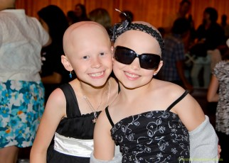 alopecia-girls