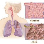 Stem cells for COPD?