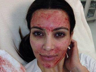 kardashian-vampire-facial