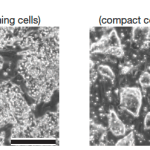 Fuzzy New Stem Cells Bring Reprogramming into Focus