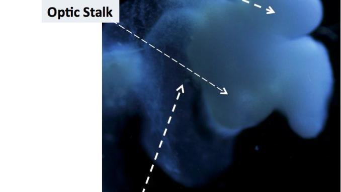 human fetal brain IPSC