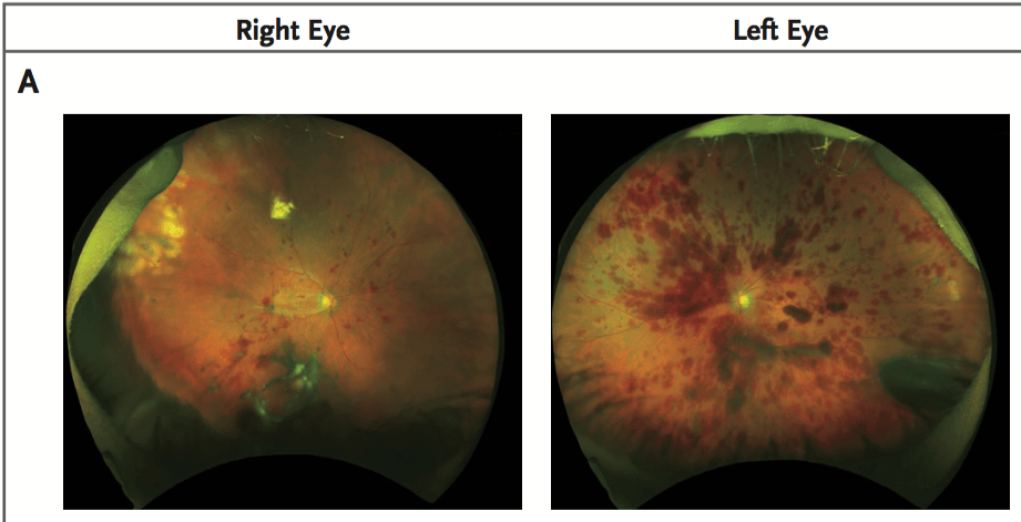 stem cells eyes
