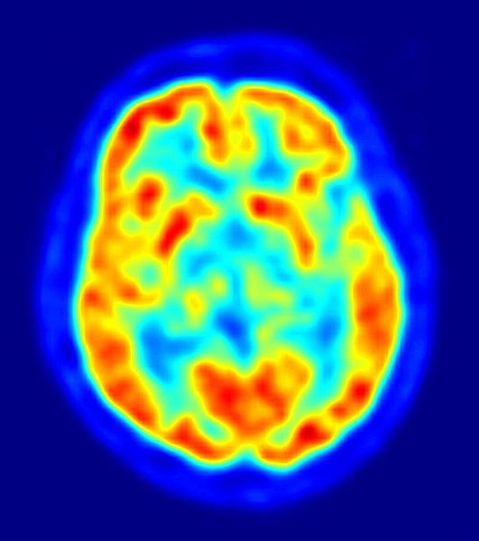 Brain-PET-scan