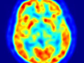 Brain PET scan