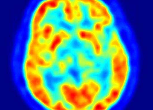 Brain PET scan