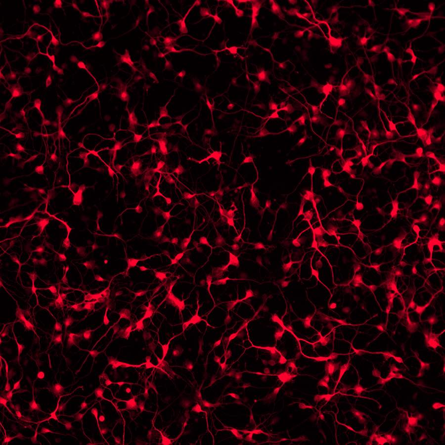 Dopamine-neurons-derived-from-a-Parkinsons-disease-patients-iPSCs-Tyrosine-hydroxylase-1