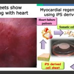 Japan conditionally approves new IPS cell-based heart study