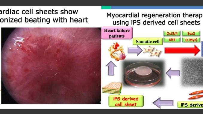 Yoshiki Sawa IPS cells stem cells heart diseease