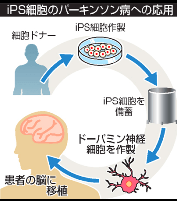 Jun Takahashi, stem cells parkinson's