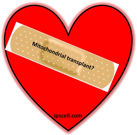 mitochondrial-transplant-for-heart