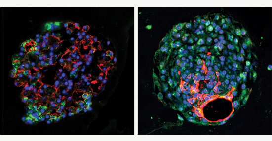 lung stem cells, lung health institute