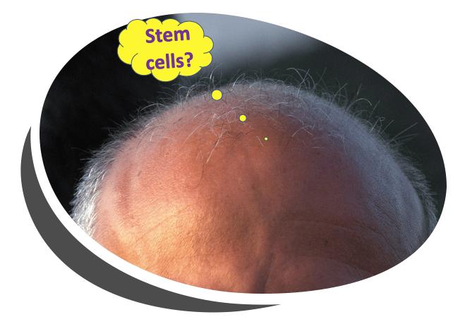 stem-cells-baldness