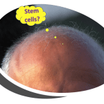 Stem cells for baldness: any progress in 2019?