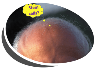 stem cells baldness