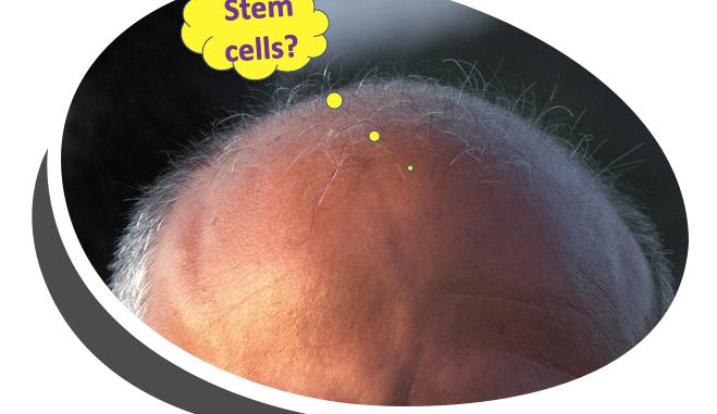 stem cells baldness
