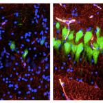 Weekend reads: reversing death of pig brain cells, brain-gut stem cell link, plant stem cells, & more