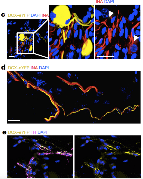 Mauffrey-Nature-Prostate-Neural-invasion-2019-Fig-3ce