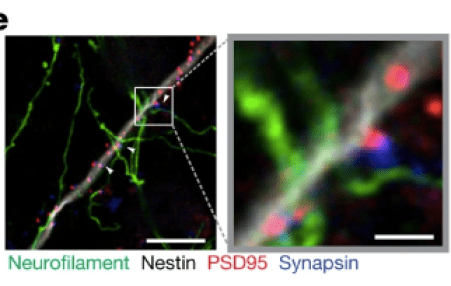 """Venkatesh, et al. Nature 2019, Fig 2e """"2e, Representative confocal image of neurons co-cultured with PSD95–RFP-labelled glioma cells. White box and arrowheads highlight region of synaptic puncta colocalization; magnified view is shown to the right. Green denotes neurofilament (axon); white denotes nestin staining (glioma cell processes); blue denotes synapsin (presynaptic puncta); red denotes PSD95–RFP staining (postsynaptic puncta). Scale bars, 10 µm (left) and 2 µm (right)."""""""
