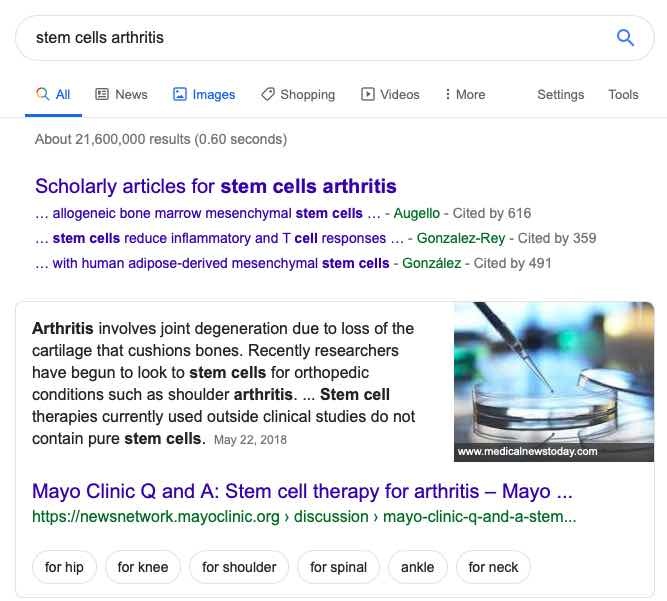 Google-ad-ban-stem-cell-clinics