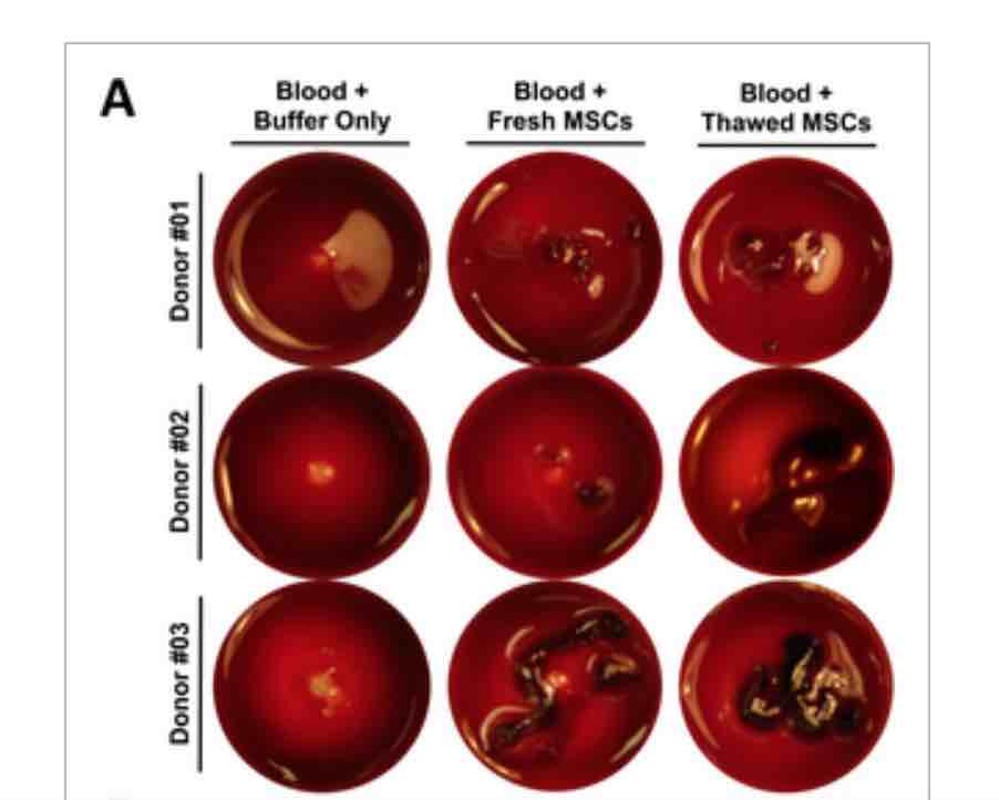 Moll-et-al.-effect-of-freezing-on-stem-cells-stem-cell-news-FI