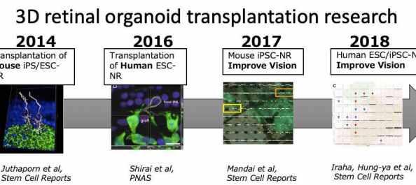 3D retinal organoid transplantation research