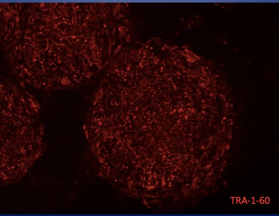 IPS cells, induced pluripotent stem cells, Knoepfler lab, stained for TRA-1-60, an ES cell marker., where do stem cells come from?