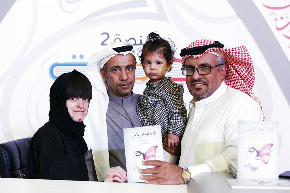 « EB نصفي الآخر» أبرار آل عثمان تحكي تجربتها مع مرض الفراشة
