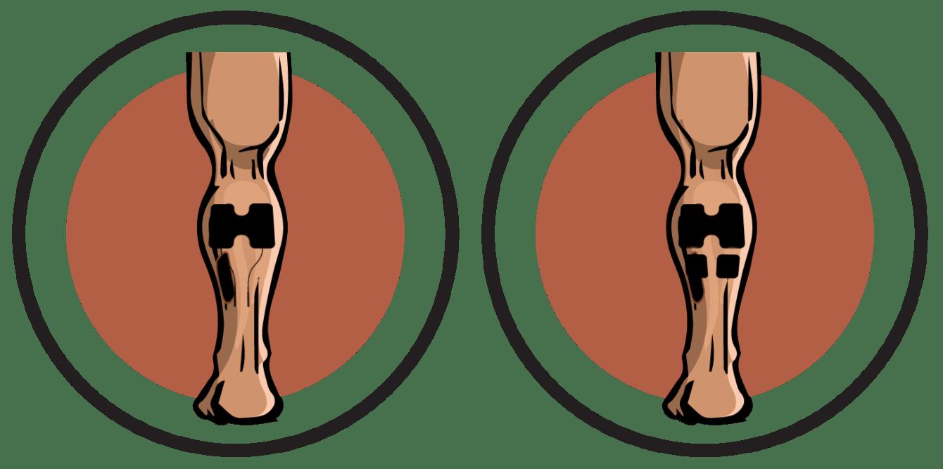 Calves Electrode Pad Placements
