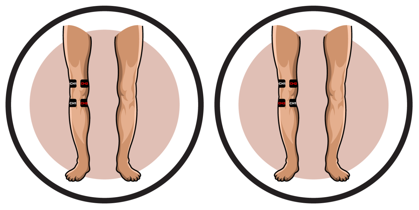 Degenerative Arthritis of Knee Electrode Pad Placement