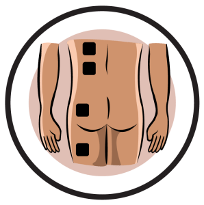 Hip neuralgia Electrode Pad Placement