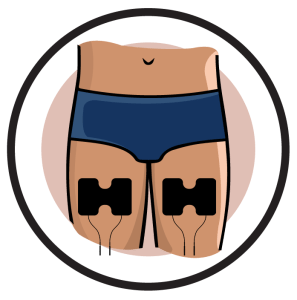 Quadriceps Electrode Pad Placements