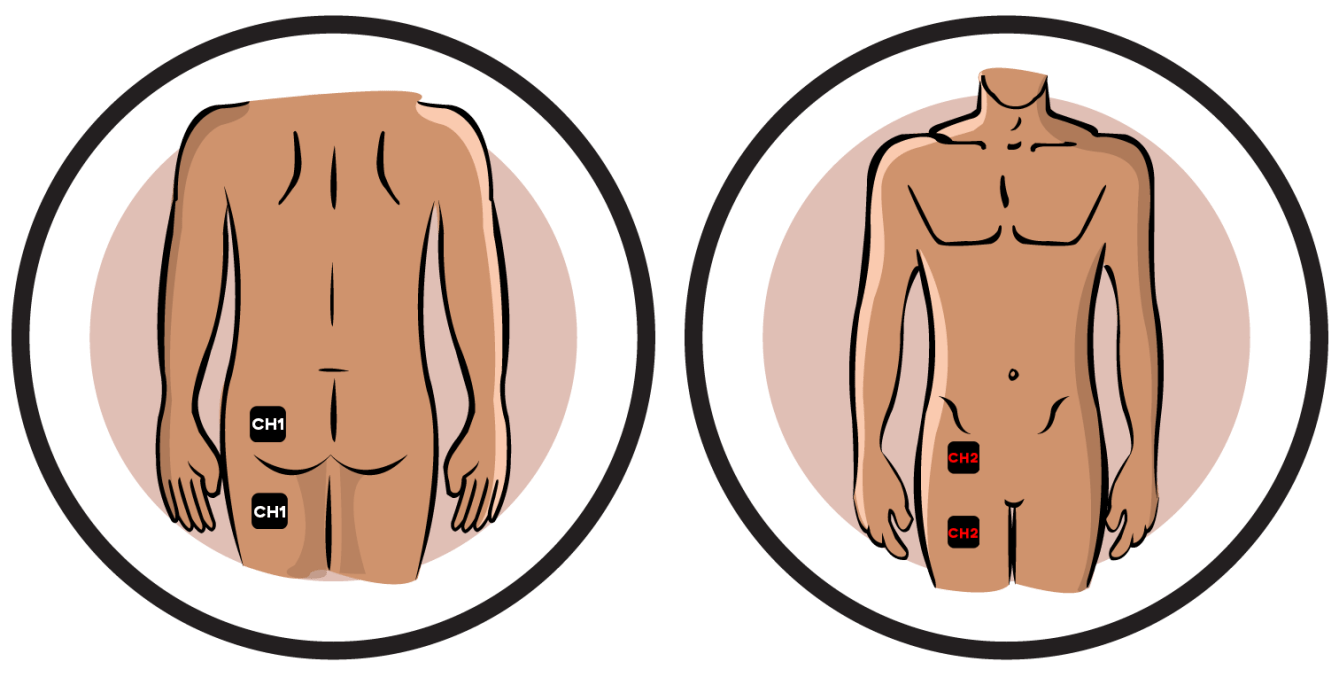 Low Extremity Pain-Reflex Sympathetic Dystrophy Electrode Pad Placement