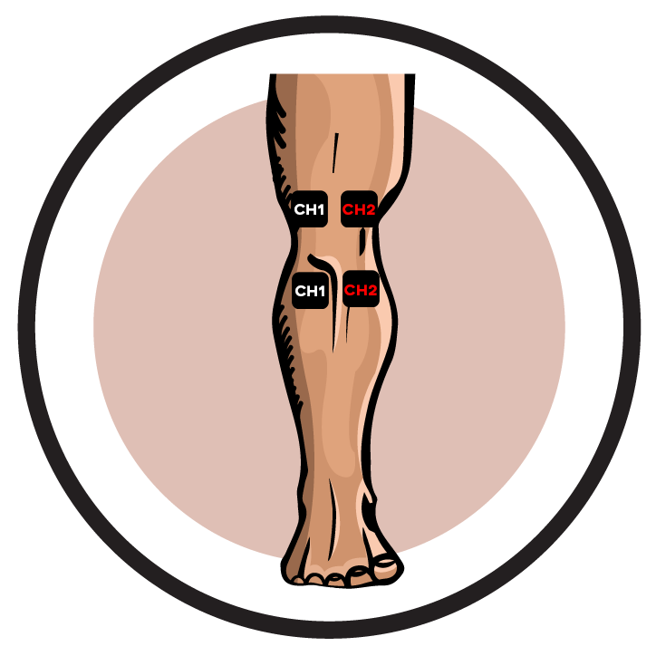 Knee Arthroscopy Post-Operative Pain Electrode Pad Placement