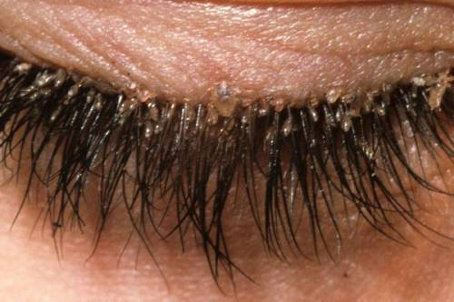 Demodex Eyelid Infestation