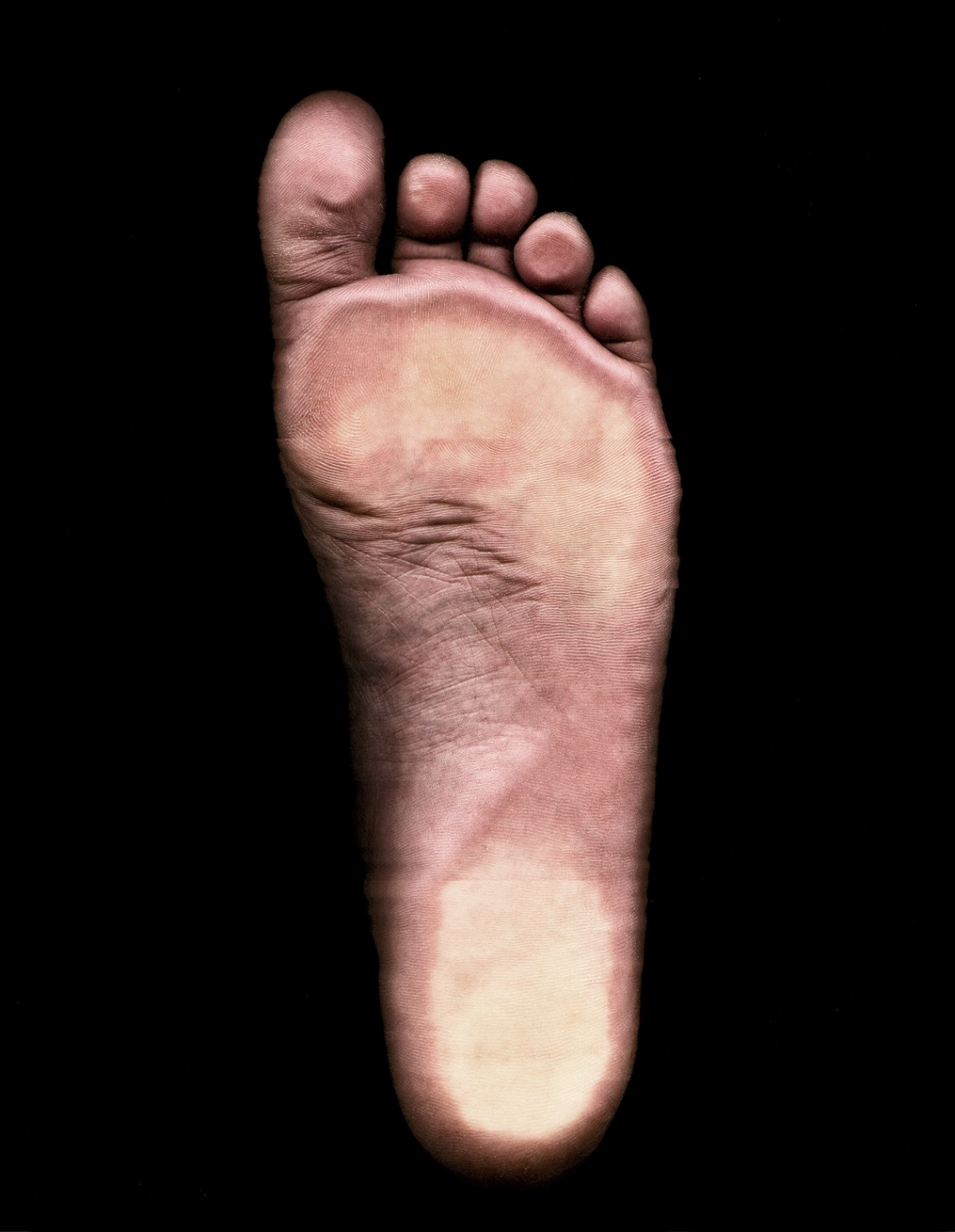 Photography by Gary Crossey IrishGuy - Foot Study