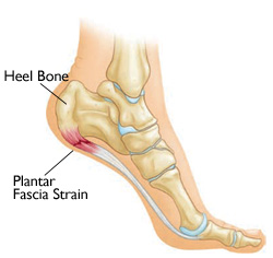 triathlon run training tips  -Plantar Fasciitis symptoms