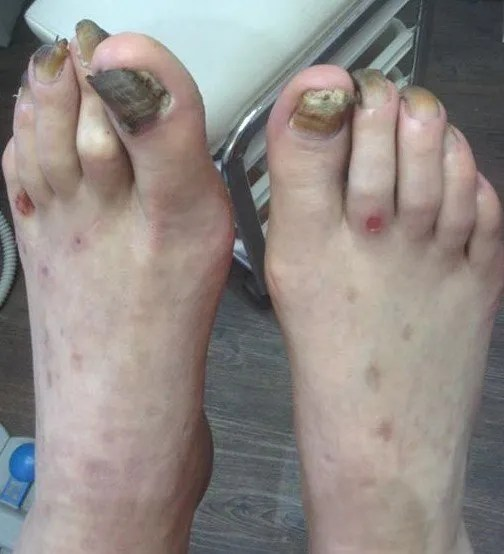 Gallery of foot problems that we can treat across Cheshire