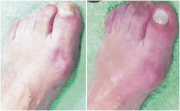 foot health essex and advice