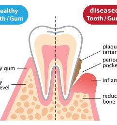 is an infectious and inflammatory disease which destroys the periodontal tissues these tissues consist of the gums and the bone that support the teeth  [ 1920 x 1476 Pixel ]
