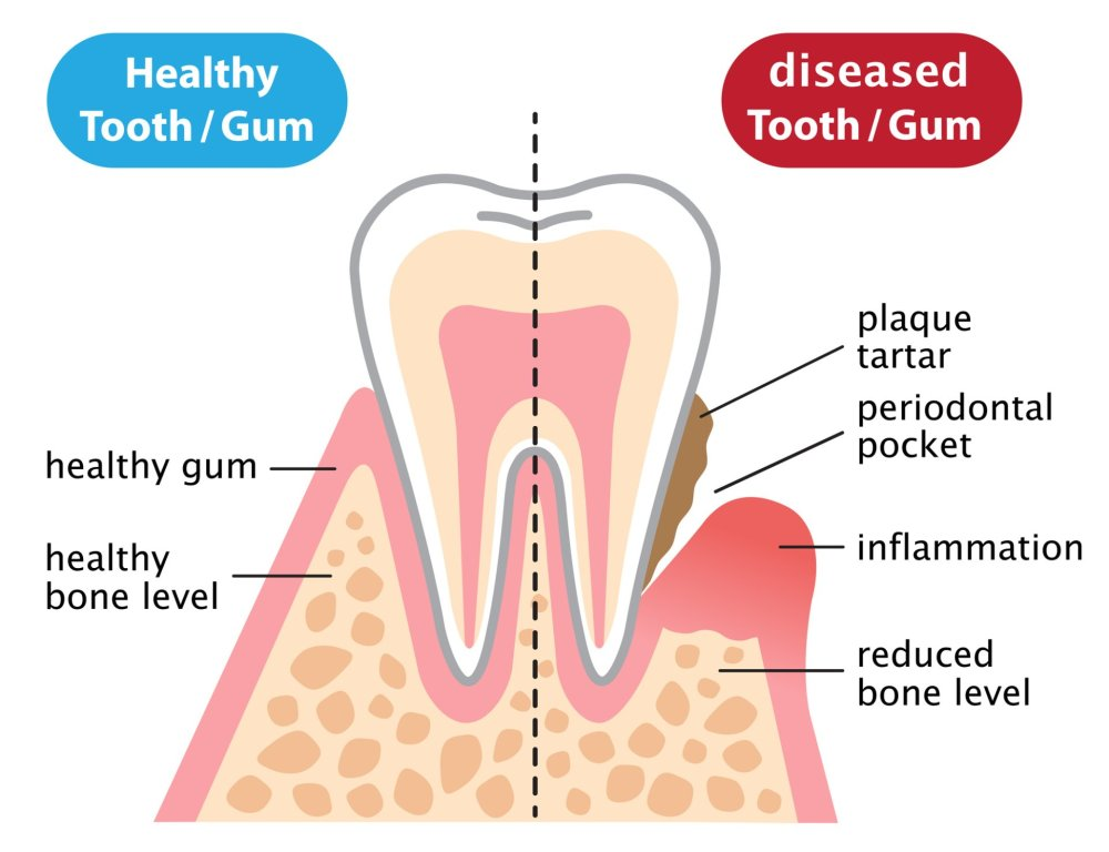 medium resolution of  is an infectious and inflammatory disease which destroys the periodontal tissues these tissues consist of the gums and the bone that support the teeth