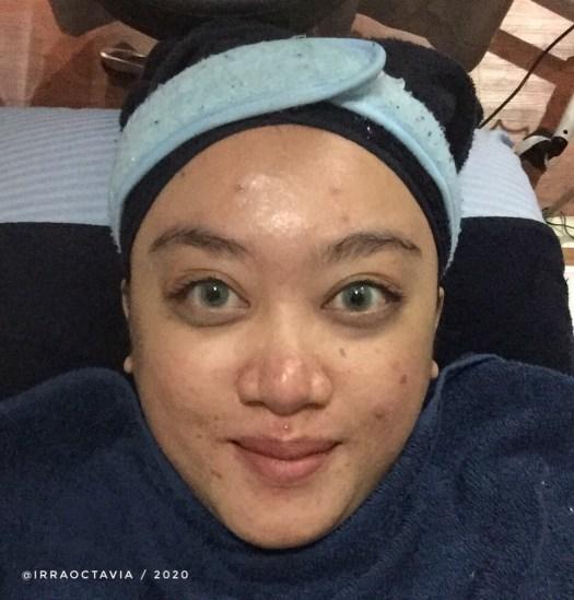 Wajah bareface sebelum facial