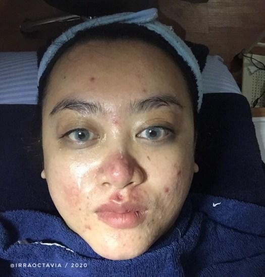 Wajah setelah ekstraksi komedo di skinethica bandung