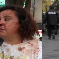 Desalojo en Álvaro Obregón deja varios heridos