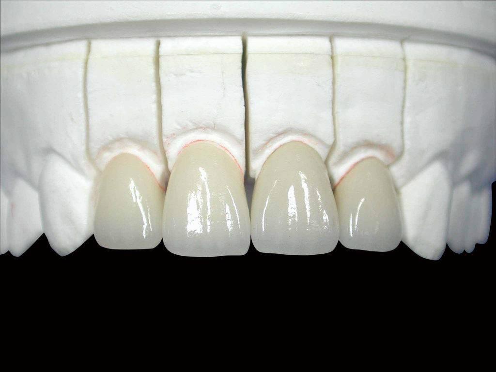 GUOYOU DENTAL ALL CERAMIC CROWN - Shenzhen Guoyou Denture Co..Ltd