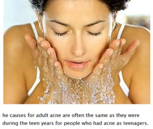 Learn How To Get Rid Of Pimples Fast Best Natural Acne Cure Treatment Right Now