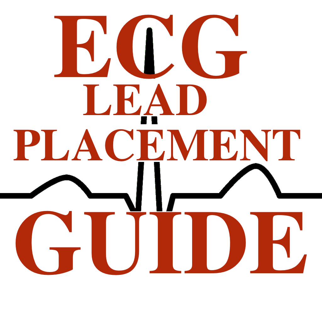 Ecg Ekg Lead Placement Guide