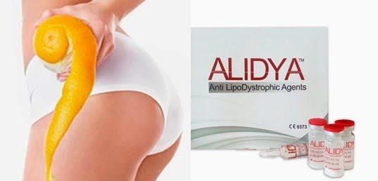 Alidya tratamiento recomendado contra la celulitis en las mejores webs