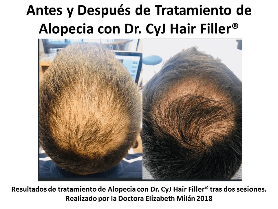 Antes y Después de tratamiento de alopecia con Dr. CyJ